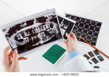 Panoramic x-ray jaw. A dentist holding an x-ray the patient's tooth and indicates the problem