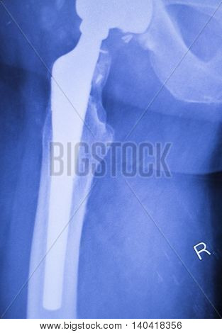 Hip Replacement Orthopedics Implant Xray