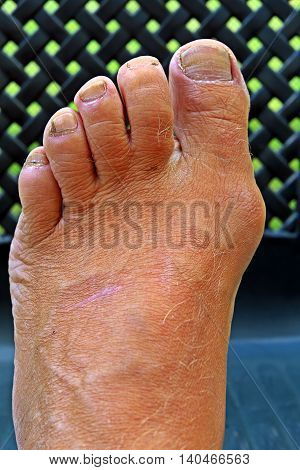 Foot with an offset thumb bunion hallux valgus on a dark background