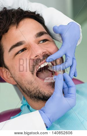Male Patient Whitening Teeth At Dentist Office