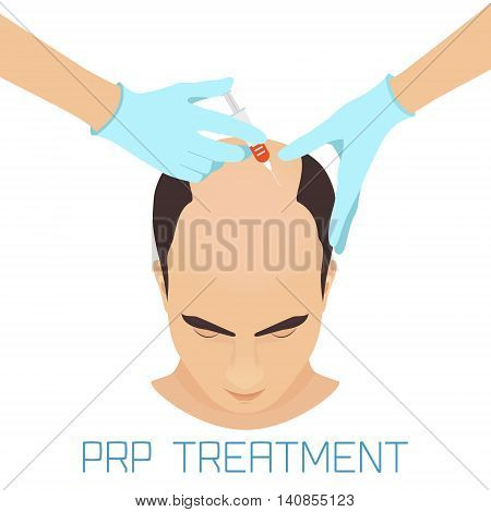 Platelet rich plasma injection procedure for balding men. PRP treatment process. Male hair loss treatment infographics. Meso therapy. Hair growth stimulation. Vector illustration.