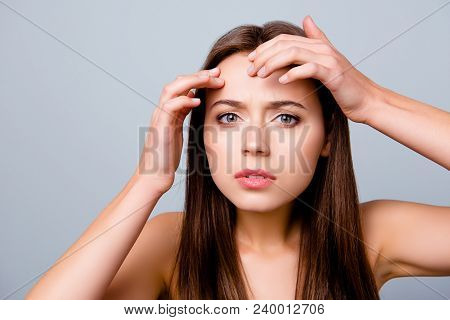Close Up Portrait Of Frustrated Sad Upset Beautiful Young Woman Is Squeezing Out Pimples On Her Fore