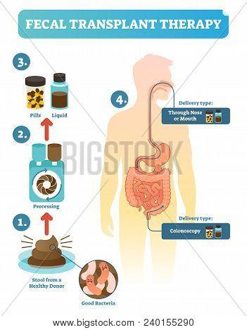Fecal Transplant Therapy, Procedure Steps Diagram, Vector Illustration. Healing Human Digestive Micr