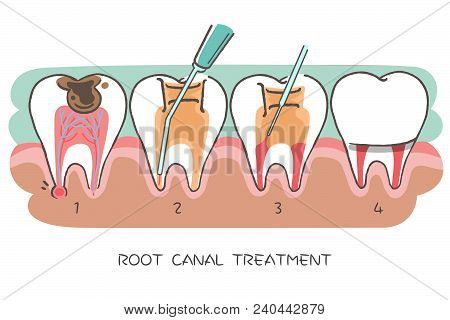 Tooth With Root Canal Treatment On The Hwite Background