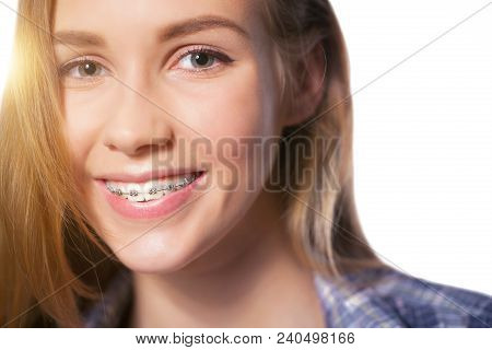 Beautiful Young Blondie Girl Showing Her Dental Braces Isolated On White