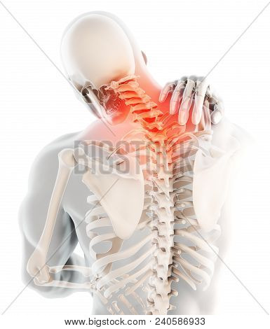 3d Illustration, Neck Painful - Cervical Spine Skeleton X-ray, Medical Concept.