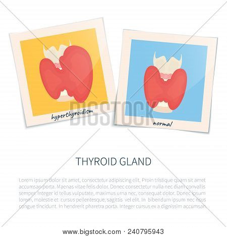 Hyperthyroid And Healthy Glands In Photo Frames. Thyroid Diagram Front View Sign. Human Body Organ A
