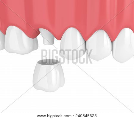 3D Render Of Upper Jaw With Teeth And Dental Crown Restoration