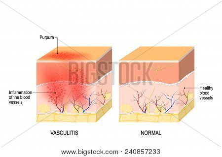 Vasculitis Is Damange Of Blood Vessels By Inflammation. Cross Section Of The Human Skin With Vasculi