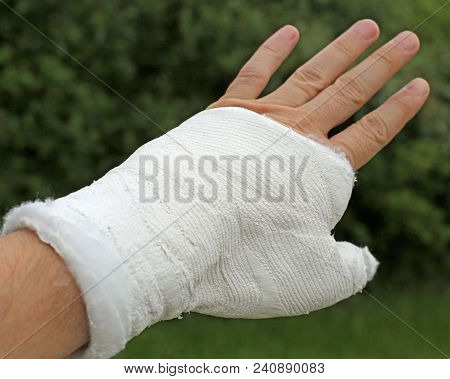 Injured Hand With The White Medical Cast After The Fracture Of The Thumb Phalanx