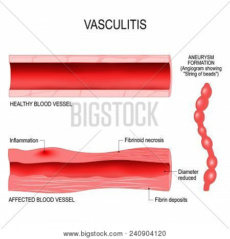 Vasculitis Is Damange Of Blood Vessels By Inflammation. Cross Section Of The Affected, And Healthy B