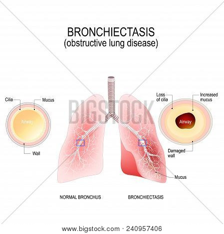 Bronchiectasis. Normal Bronchus And Bronchiectasis. Enlarged Small Airways That Collect Mucus And Ca