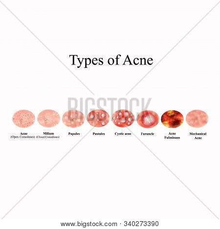 Types Of Acne Skin Inflammation. Pimples, Boils, Whitehead, Closed Comedones, Papules, Pustules, Cys