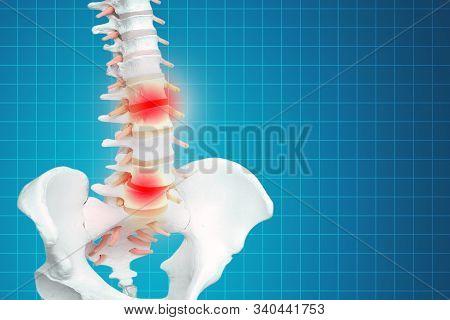 Realistic Skeletal Human Spine And Vertebral Column Or Intervertebral Discs On A Dark Background. Lo