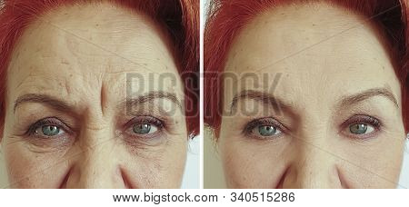Elderly Woman Wrinkles Face Before And After Treatment
