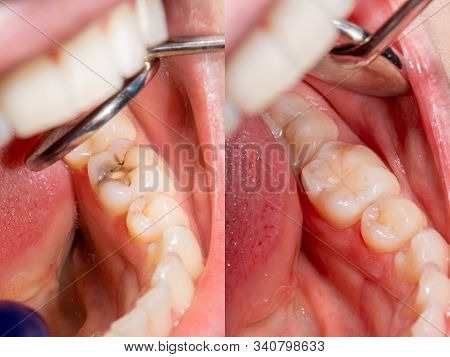 Dental Caries. Filling With Dental Composite Photopolymer Material Using Rubber Dam. The Concept Of