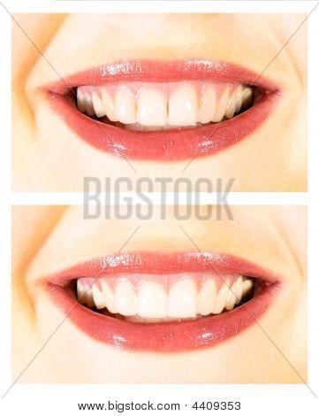 Breite Smile weiß zähne