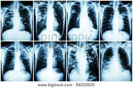 Pulmonary Tuberculosis Collection