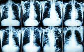 Pulmonary Tuberculosis Collection . Chest X-ray : show patchy infiltration interstitial infiltration alveolar infiltration cavity fibrosis at lung due to Mycobacterium tuberculosis infection poster