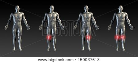 Knee Injury with Red Glow on Area Series 3D Illustration Render