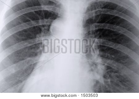 Thorax X-Ray Of The Lungs