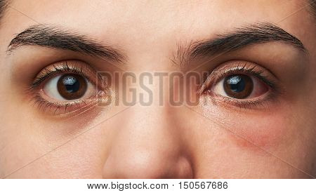Allergy Reaction On Eye