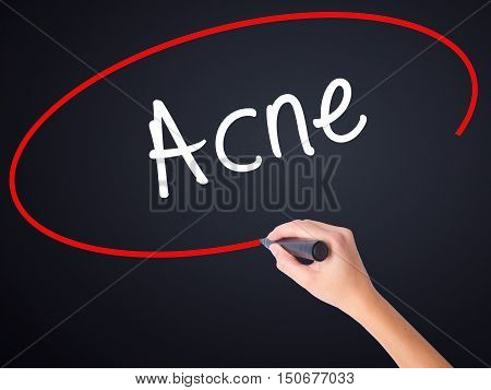 Woman Hand Writing Acne With A Marker Over Transparent Board