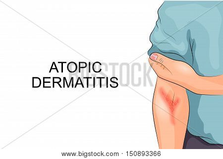 illustration of atopic dermatitis. allergies. dermatology. inflammation poster