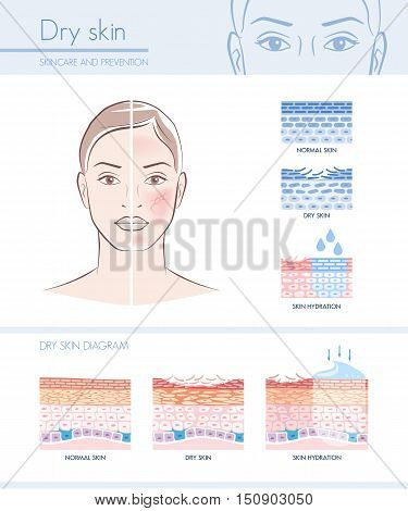 Dry skin hydration infographic with skin diagram; skincare and beauty concept poster