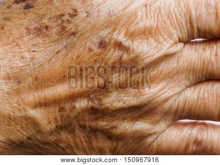 Freckle on an asian woman skin closeup
