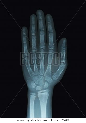 Child Hand X-Ray Negative of Unclosed Epiphysis Bone Stage
