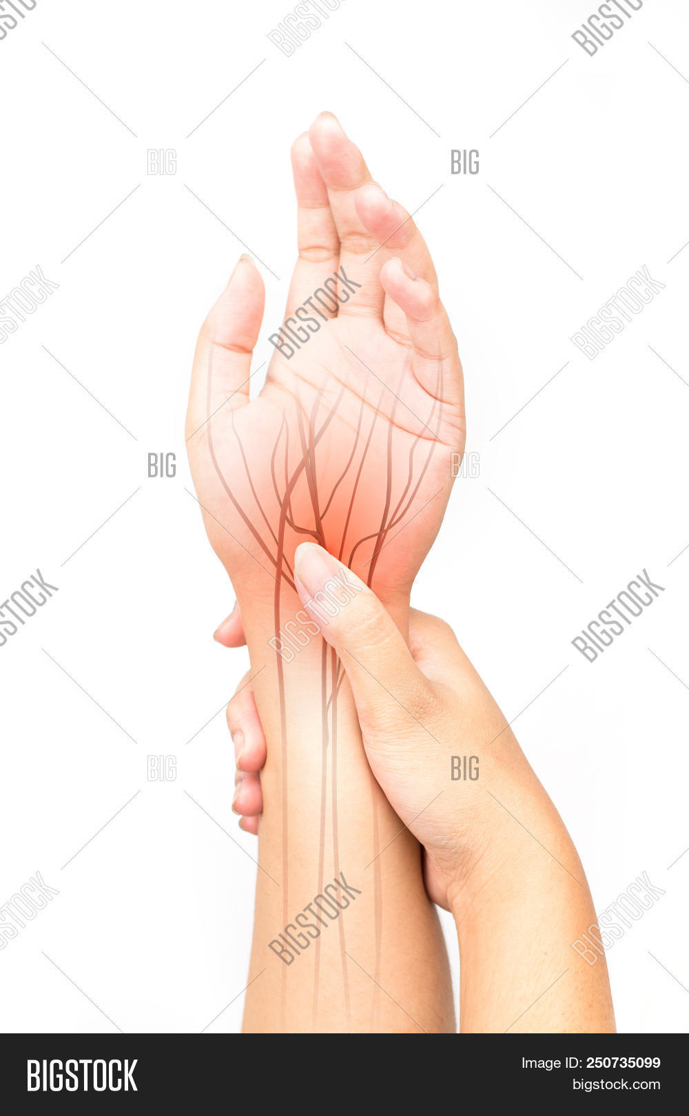 Wrist Nerve Pain Image Photo Free Trial Bigstock