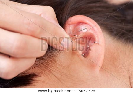 Acupuncture therapist placing needle in ear of patient poster