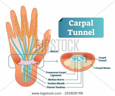 Carpal Tunnel Vector Illustration Scheme. Medical Labeled Diagram Closeup With Isolated Muscle, Tran