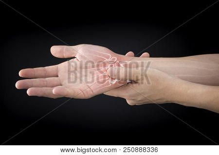 Wrist Bones Injury White Background Wrist Pain