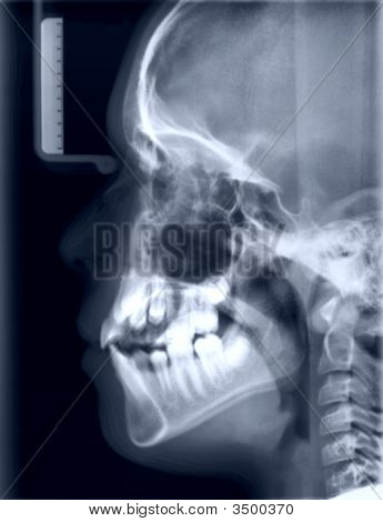 X-Ray Picture Of The Skull A Person