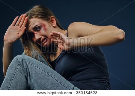 Grieved Woman In Black T-shirt And Jeans. Bleeding Face Covered With Bruises, Hiding Behind Hands, S