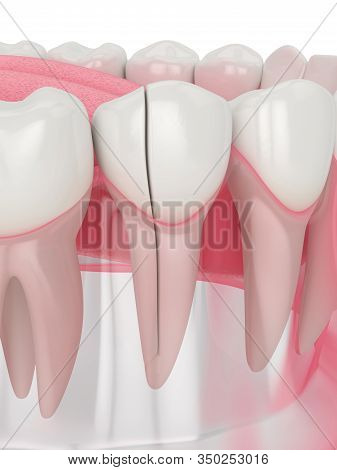 3d Render Of Jaw With Split Tooth Over White Background. Types Of Broken Teeth Concept.