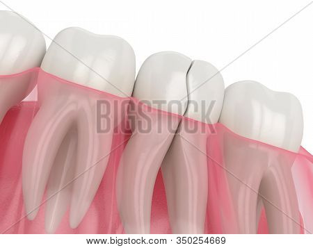 3d Render Of Jaw With Nontreatable Cracked Tooth Over White Background. Types Of Broken Teeth Concep