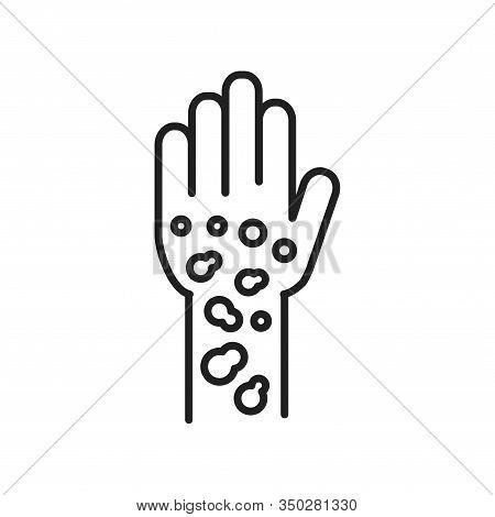 Psoriasis, Dermatitis Line Black Icon. Concept. Skin Rash. Dermatological Diseases. Itchy Spots On H