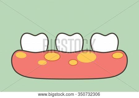 Unhealthy Teeth Because Gingivitis Or Gum Disease With Abscess In Gum - Dental Cartoon Vector Flat S