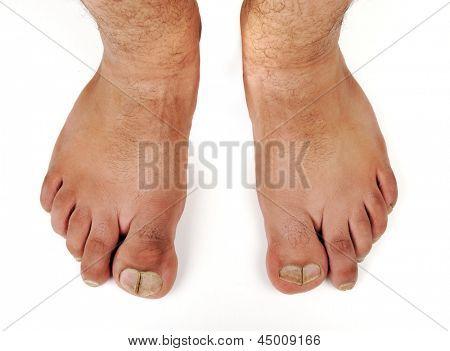deformed male feet