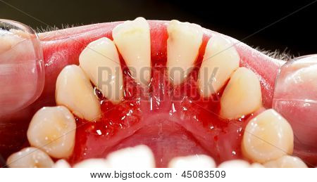 Human mouth after dental treatment - clean of tartar. poster