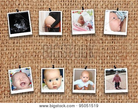 Photos Of Baby From Medical Ultrasonography To Teen