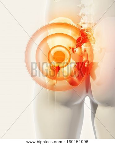 Hip Painful Skeleton X-ray, 3D Illustration.