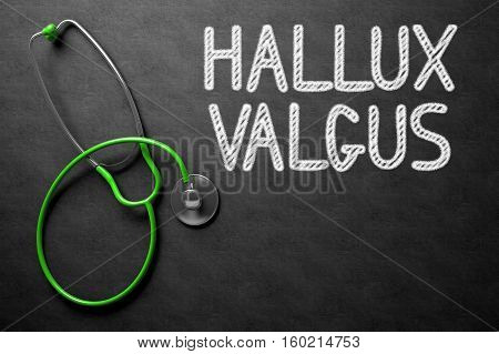 Medical Concept: Top View of Green Stethoscope on Black Chalkboard with Medical Concept - Hallux Valgus. Medical Concept: Hallux Valgus Handwritten on Black Chalkboard. 3D Rendering.