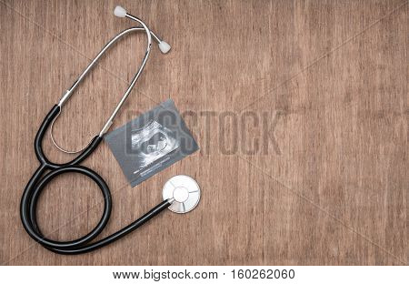 baby ultrasound picture and stetoscope on wooden background