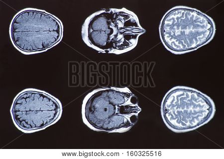 X-ray image of the brain computed tomography, imaging of the brain