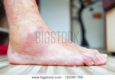 Colorful broken leg - right foot - ankle