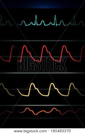 ECG curves on the heart monitor. Colored background